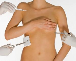 plastines operacijos